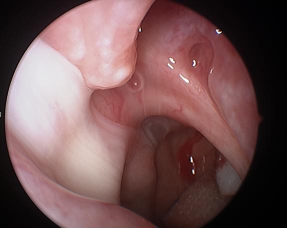 Acute/Subacute Rhinosinusitis