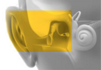 Ear Diseases Treatment Amp Surgery Sarasota