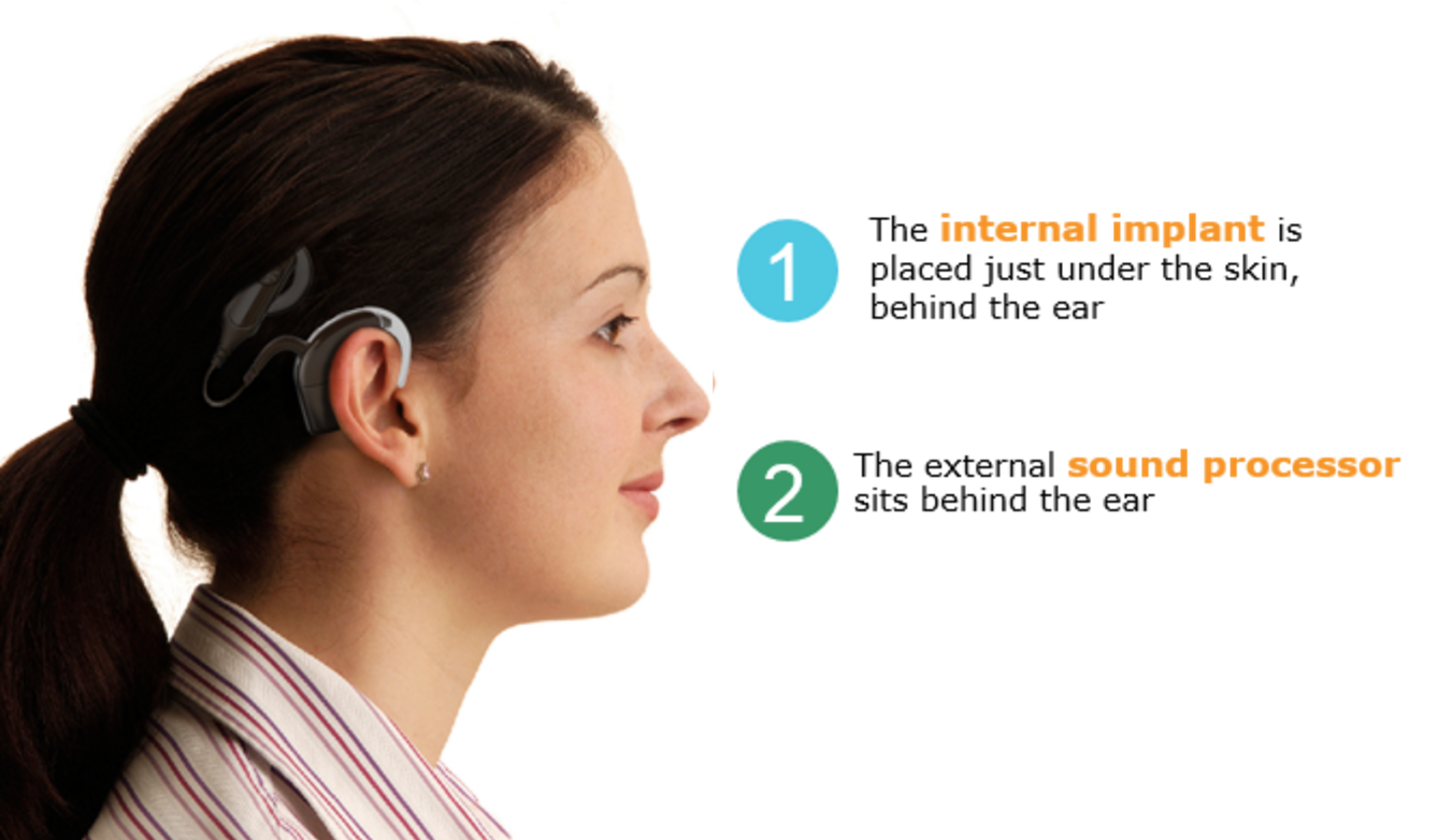 Cochlear Implant Help