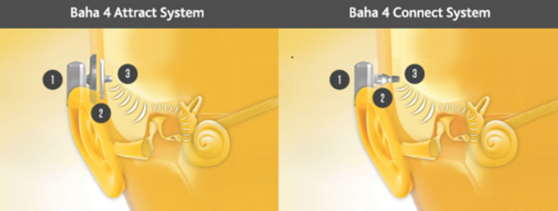 How the Baha System Works