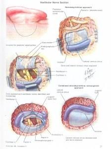 Vestibular Nerve Section